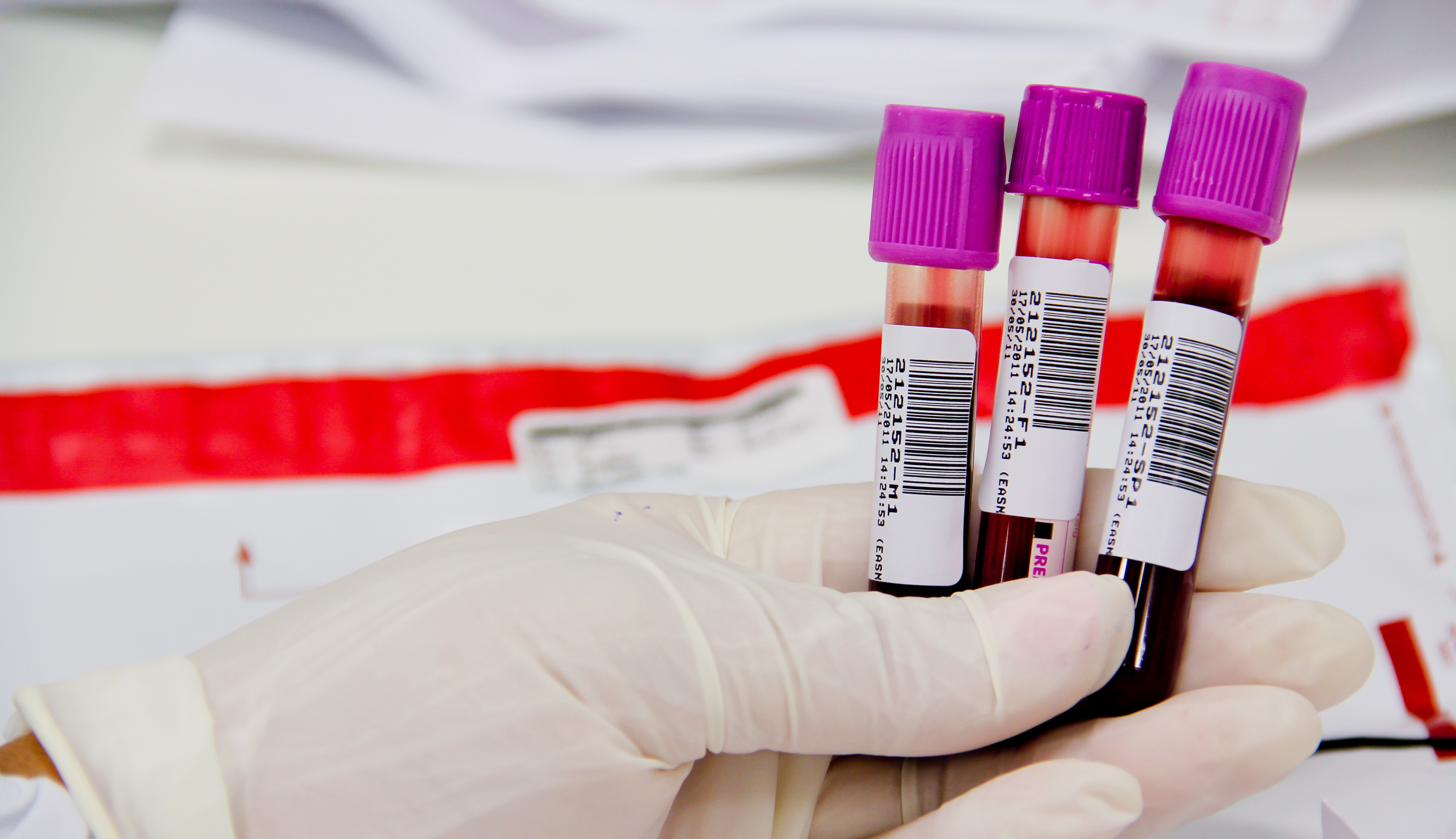 Tipo de exames de sangue