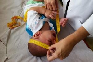 OMS garante que não há relação entre microcefalia e vacinas no Brasil