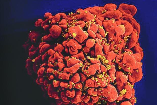 Cientistas desenvolvem antiviral promissor contra o vírus da Aids